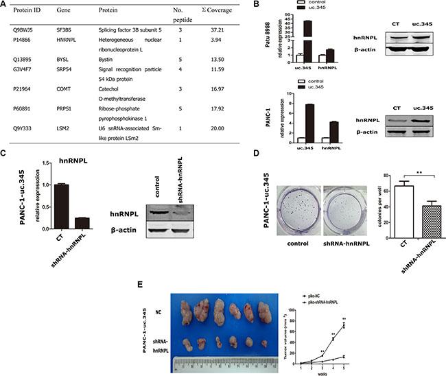 uc.345 promotes PC cells tumorigenecity depending on hnRNPL.