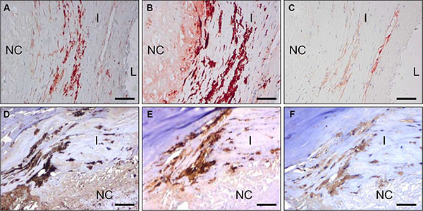 C-C7 recognizes blood vessels and macrophages in human atherosclerosis.