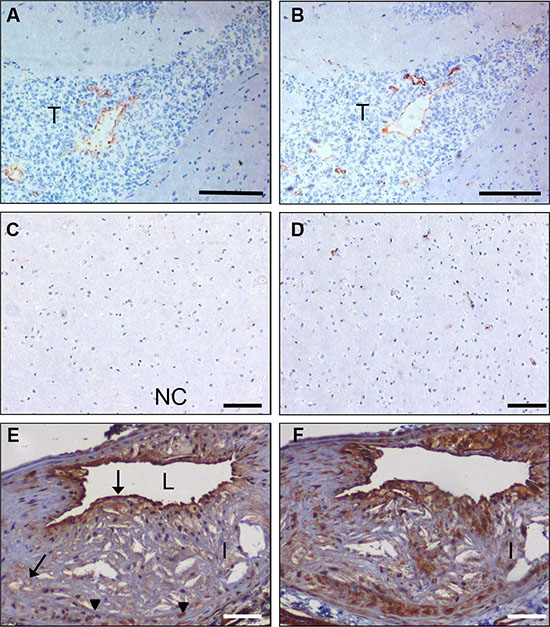 In vivo targeting of glioma xenografts and atherosclerotic lesions by C-C7-displaying M13 phages.