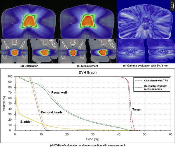 A prostate volumetric modulated arc therapy (VMAT) example of quasi-3D gamma evaluation with a gamma criterion of 3%/3 mm using the COMPASS system is shown.