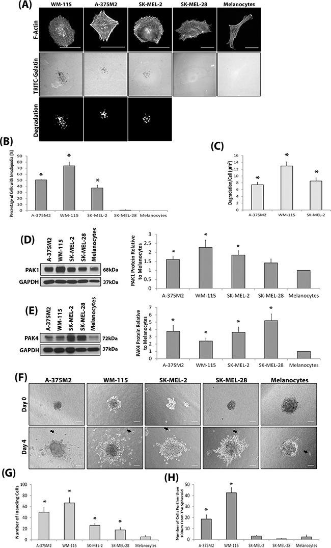 Invasive melanoma cell lines overexpress PAK.