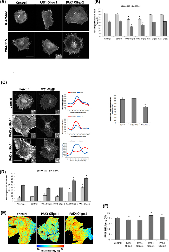 Differential PAK1 and PAK4 signalling in invasive cells.