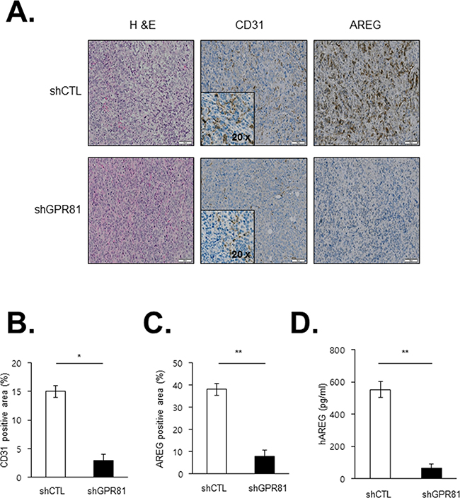 Effects of GPR81 silencing on angiogenesis in an orthotopic breast cancer model.