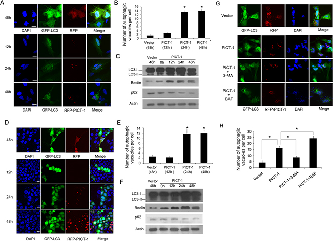 PICT-1 overexpression triggers autophagy in U251 and MCF7 cells.