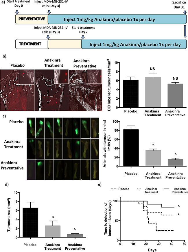 Effects of anakinra on MDA-MB-231 breast cancer dissemination and growth in bone.