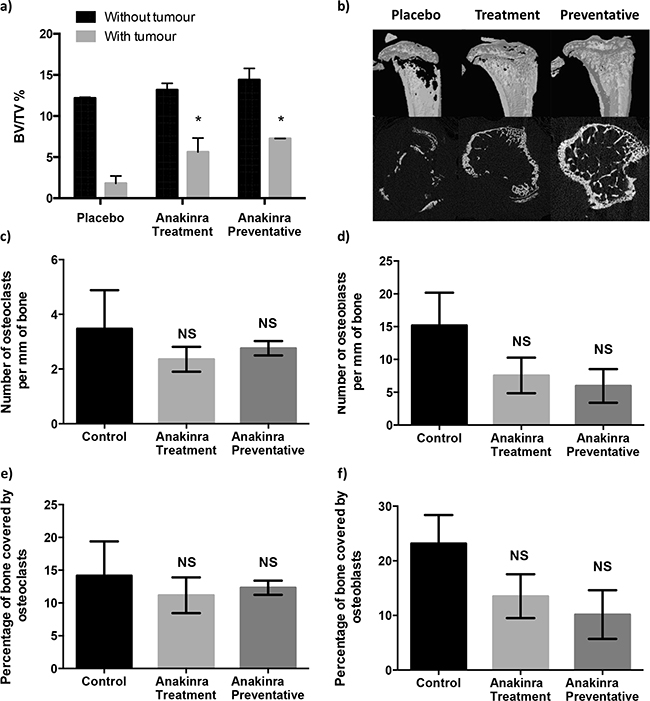 Effects of continuous IL-1R inhibition with anakinra on bone.