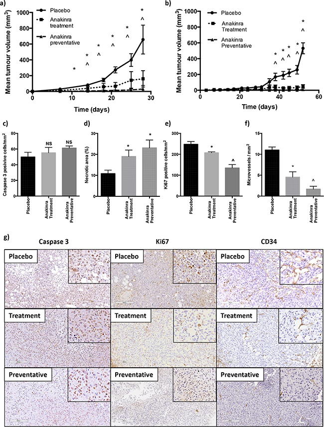 Effects of anakinra on subcutaneous MDA-MB-231-IV and MCF7 tumours.