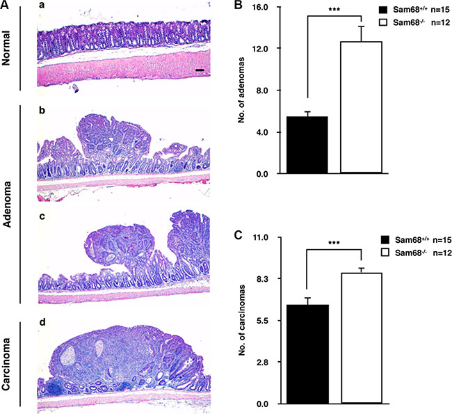 Sam68-deficient mice developed colon tumors with increased malignancy.