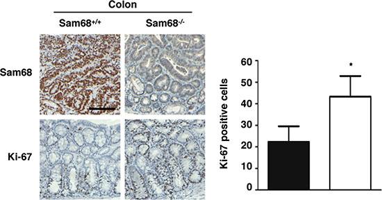 Sam68-deficient mouse colons contain more Ki-67-positive cells.