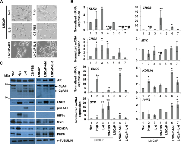 PHF8 and KDM3A are members of the Down-Up expression cluster in the in vitro models of NED and CRPC.