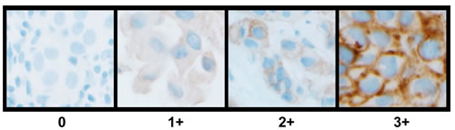 Representative images of HER4 (E200) IHC staining patterns and scoring in invasive breast carcinoma.