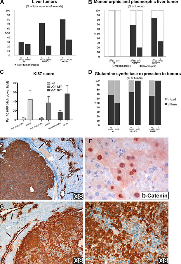 Histopathological characterization of liver tumors of 17-20-months-old wt, Krt18+/− and Krt18−/−mice.