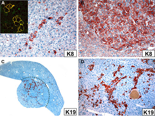 Immunoreactivity of tumor cells in Krt18−/− (A) and Krt18+/− mice (B–D) with antibodies to K8 (A, B) and K19 (C, D).