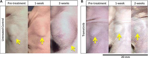 Melanoma regression caused by trametinib (TRA) in the PDOX model.