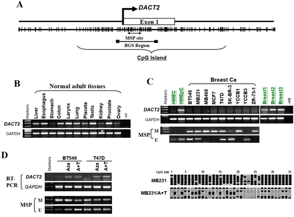 The expression and methylation status of DACT2 in breast cancer cell lines and normal mammary tissues.