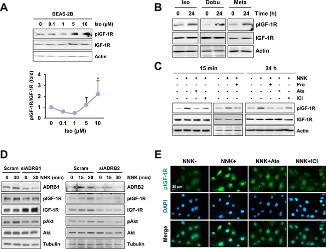 β-AR is involved in NNK-mediated IGF-1R phosphorylation.