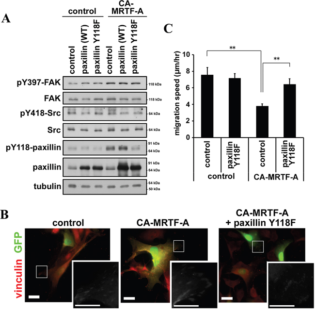 Phosphorylation of paxillin is crucial for the CA-MRTF-A-induced phenotypes.