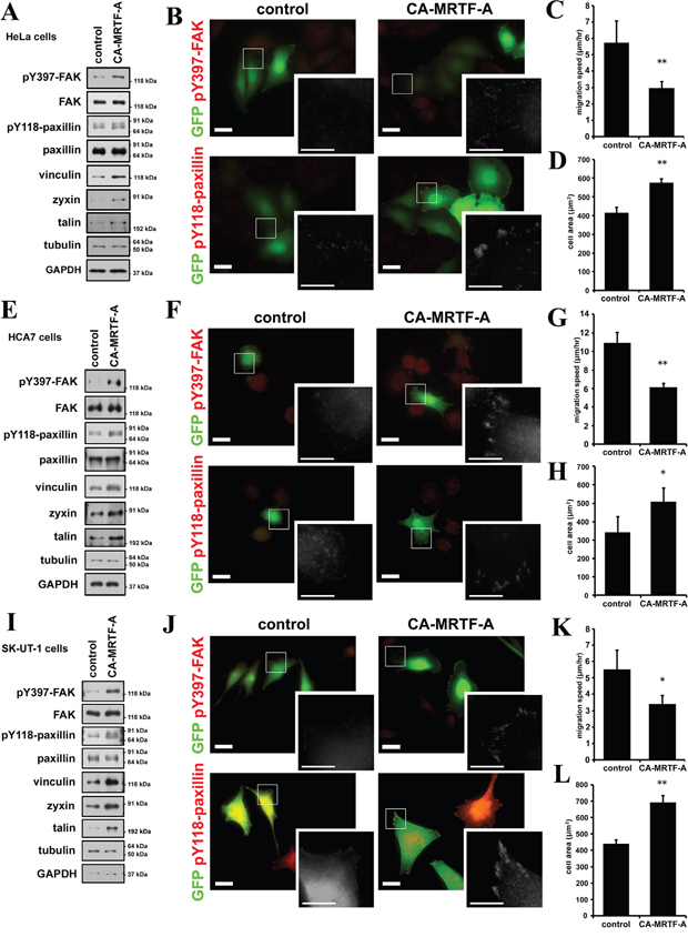 CA-MRTF-A induces the phosphorylation of FAK and paxillin also in various tumor cells.