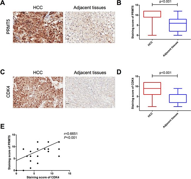 Protein levels of PRMT5 and CDK4 are positively correlated.