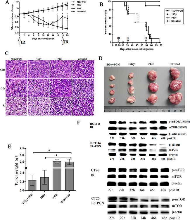 PGN synergizes with bowel irradiation to elicit enhanced antitumor responses in the CT26 model of colorectal cancer.