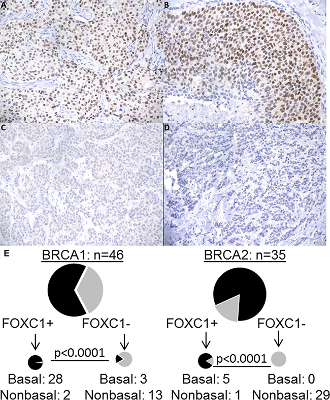 FOXC1 immunohistochemistry, BRCA1/2 mutation status, and molecular subtype.