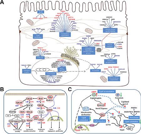 Model of HBx-induced liver carcinogenesis via dysregulation of cytoskeletal remodeling and lipid metabolism.
