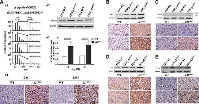 Validation for the amount changed protein CDC42, CFL1, ADFP and PPARγ in p21HBx/+mice and WT littermates by WB and IHC.