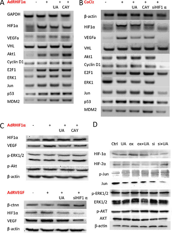 Effect of UA on HIF-1α and VEGF expression in breast cancer cells.