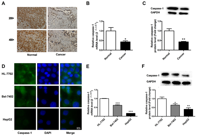 Loss of caspase-1 expression in human hepatocellular carcinoma (HCC) tissues and cells.