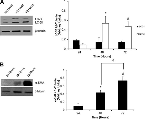 Temporal activation of autophagy and phenoconversion in P0 adult rat cardiac fibroblasts.