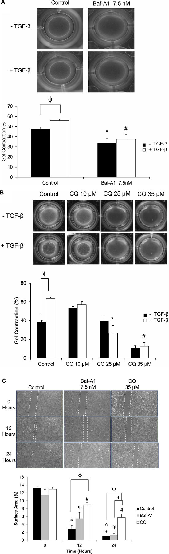 Effect of autophagy inhibition on cellular contractility and migration of P0 cardiac fibroblasts.