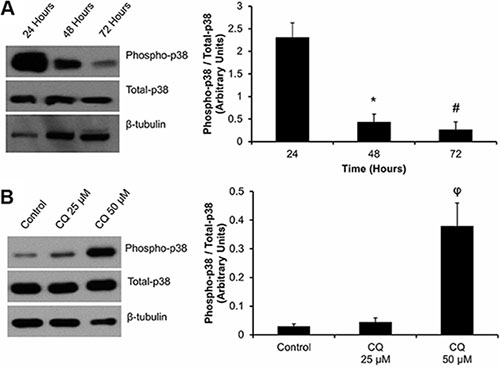 Effect of cell plating and CQ treatment on p38-MAPK phosphorylation in P0 primary cardiac fibroblasts: (Panel A).