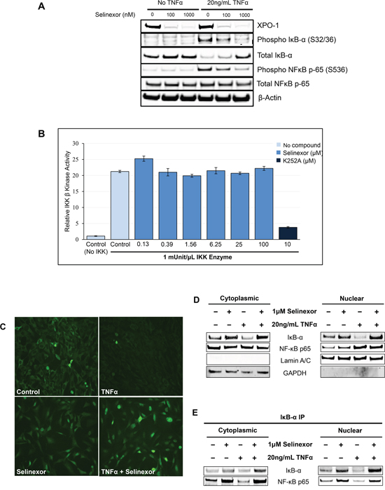 Inhibition of NF-κB transcriptional activity by selinexor is associated with nuclear localization of IκB-α and protection from degradation.