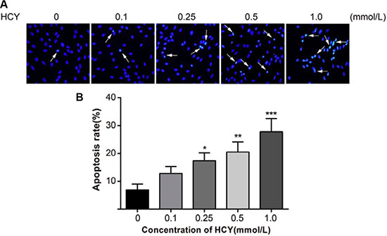 Effect of different doses (0, 0.1, 0.25, 0.5 and l.0 mmol/L) of HCY on cell apoptosis of HCAECs.