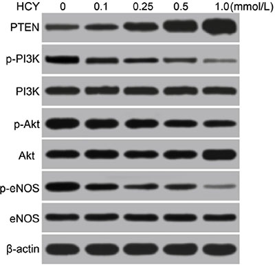 Effects of different doses (0, 0.1, 0.25, 0.5 and l.0 mmol/L) of HCY on the expressions of PTEN and the PI3K/Akt/eNOS signaling pathway-related proteins in HCAECs detected by Western blotting.