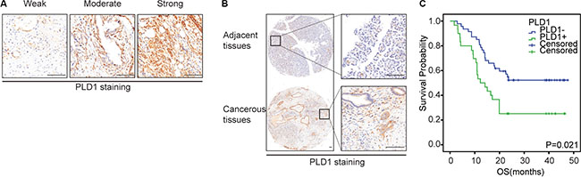 Representative immunohistochemical staining of Sp1 (A-C) and PLD1 (D-E) in PDAC.