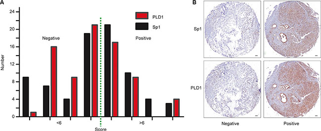 Correlation between Sp1 and PLD1 expression in PDAC samples and cell lines.