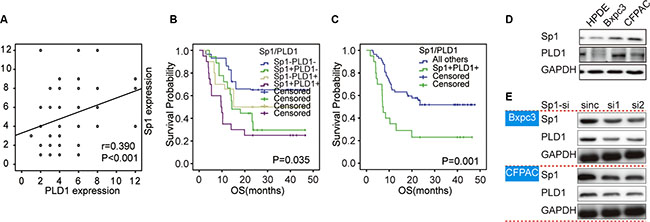 Overall survival curves based on Sp1 and PLD1 expression in PDAC.