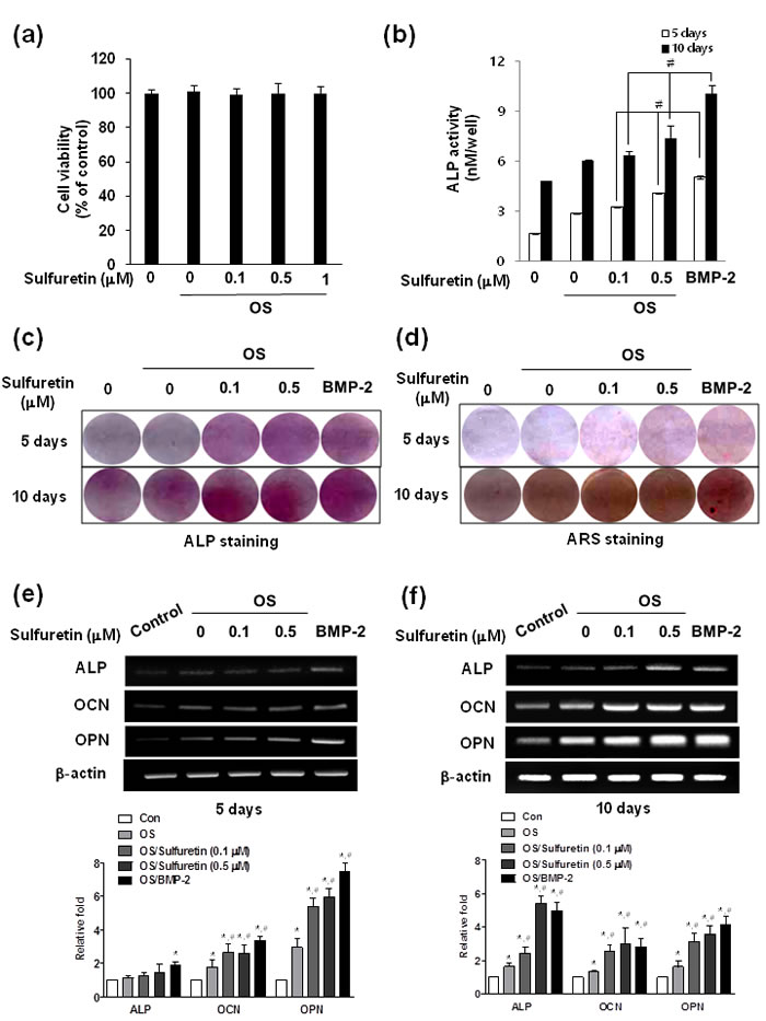 Effects of sulfuretin on cytotoxicity and osteoblastic differentiation in primary cultured osteoblasts.