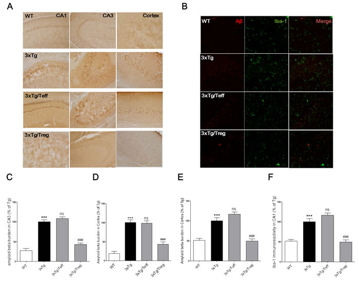 Effects of adoptive transfer on Aβ deposition and microglia activation in the brain of 3xTg-AD mice.