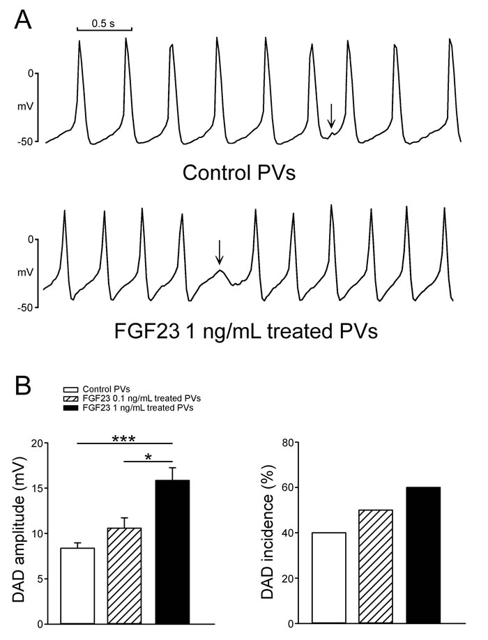 The incidence and amplitude of delayed afterdepolarizations (DADs) in control and FGF23-treated PV cardiomyocytes.