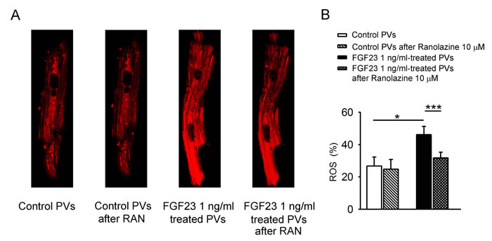 ROS in mitochondria of control and FGF23-treated PV cardiomyocytes.