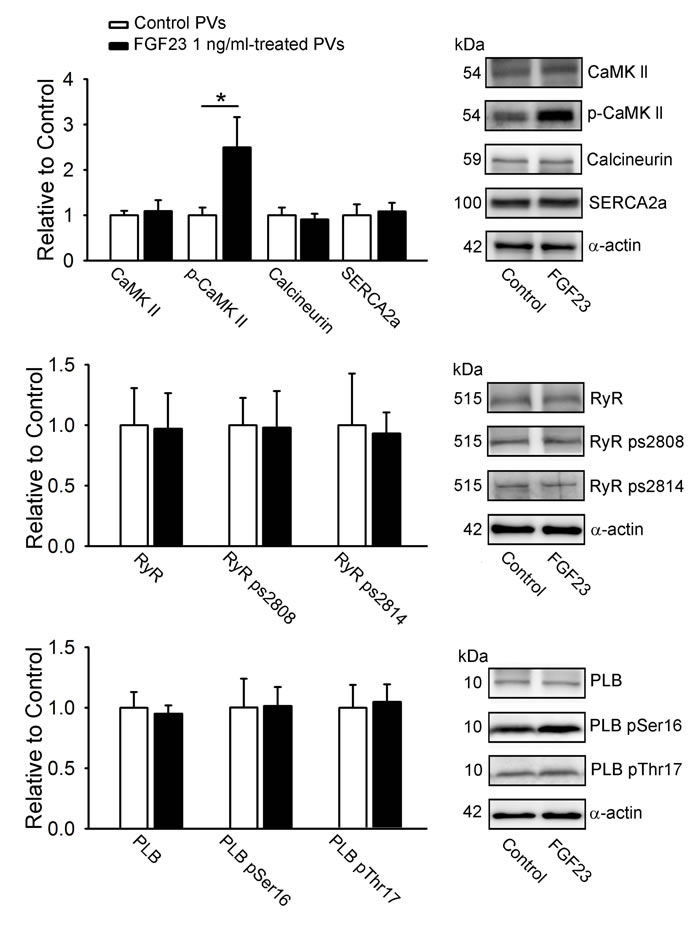 Calcium-handling proteins in FGF23-treated PV cardiomyocytes.