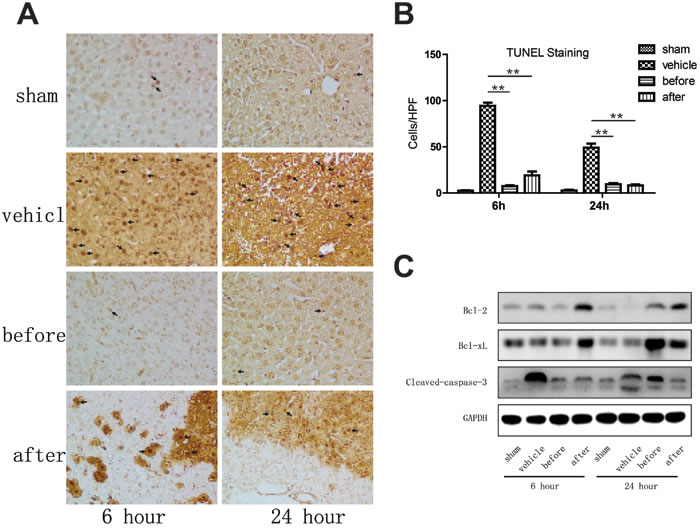Terlipressin markedly ameliorates apoptosis in mouse livers undergone IRI.