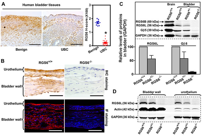 RGS6 is robustly expressed in human and mouse bladder and lost in human bladder tumors.
