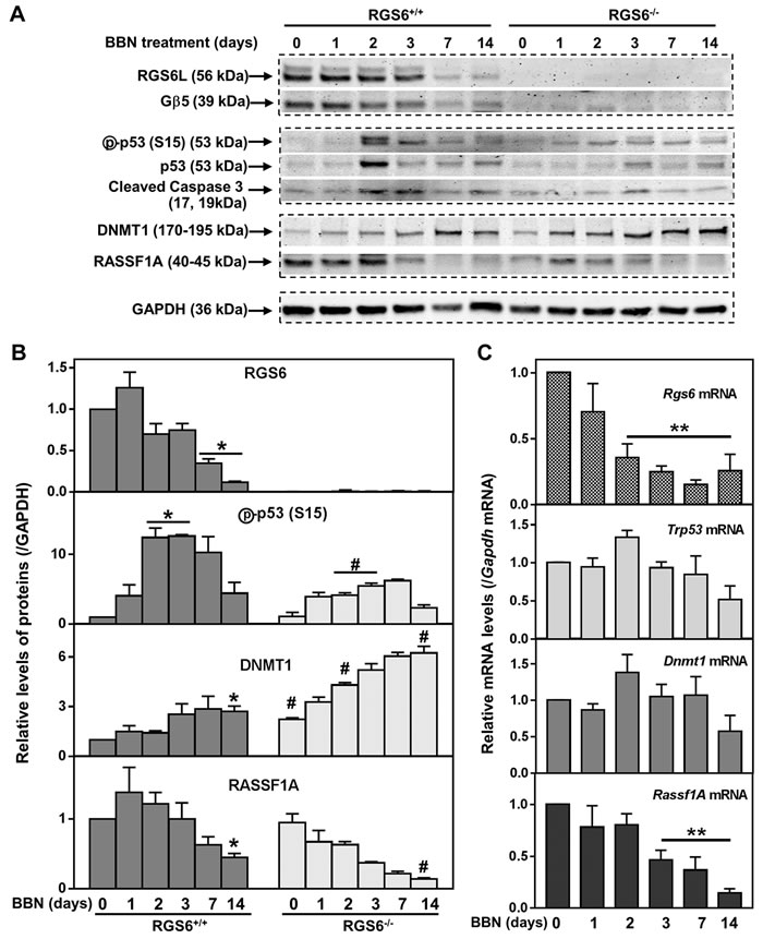 RGS6 loss exaggerates BBN-induced oncogenic signaling.