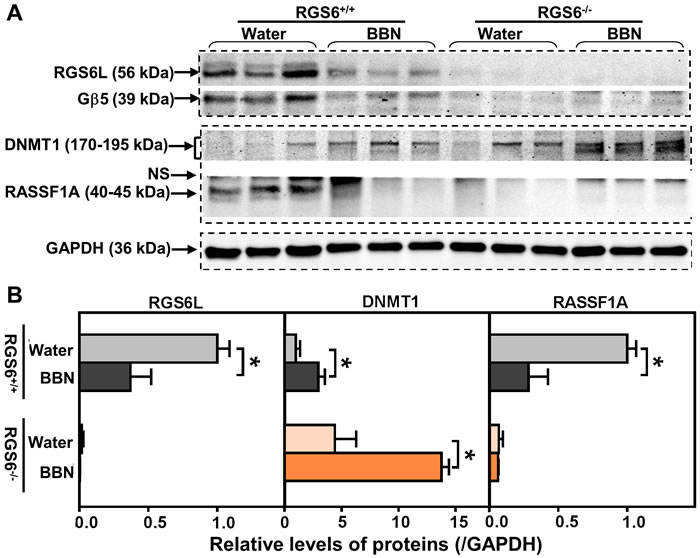 RGS6 loss exaggerated pro-oncogenic signaling in mice after chronic BBN exposure.