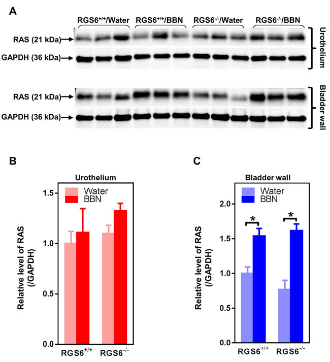 BBN treatment of mice has no effects on RAS expression in urothelium but induces RAS in bladder wall independent of RGS6.