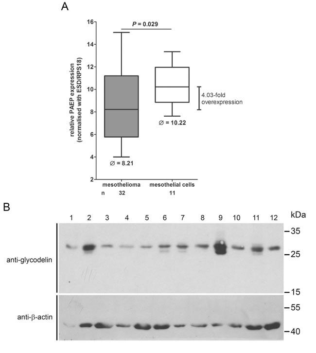 Glycodelin gene (