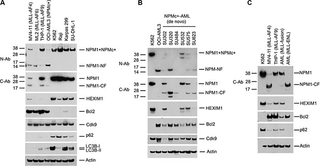 Proteolysis of NPM1 and HEXIM1 in AML cells expressing MLL-fusion proteins or NPMc+.